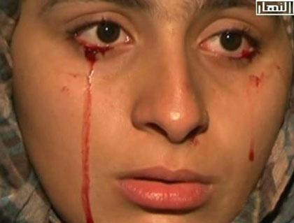 دختری که سنگ گریه می کند! + تصویر