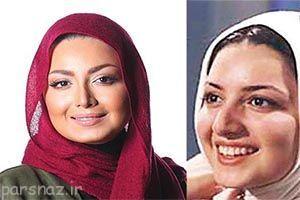 تصاویر جالب قبل و بعد از عمل بازیگران