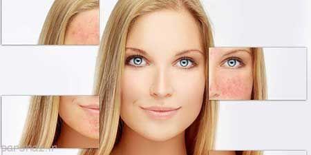 نکاتی برای مراقبت از پوست مبتلا به روزاسه