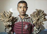عکس های عجیب از بدن درختی مرد هندی