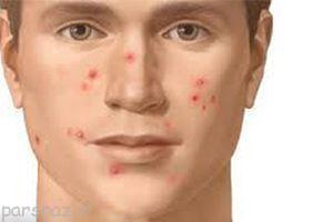 نشانه های تشخیص بیماری از روی صورت بیمار