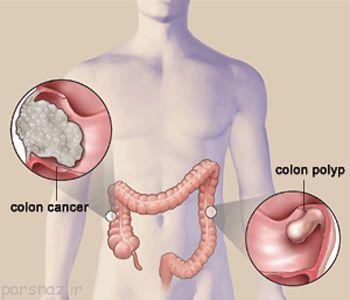 روش های پیشگیری از سرطان روده بزرگ