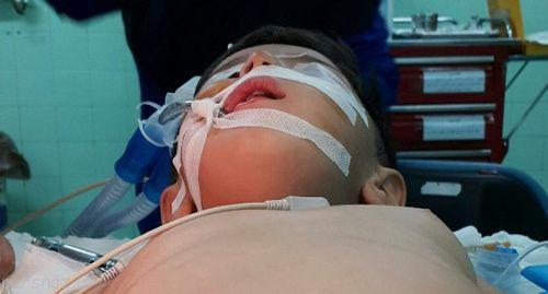 آشنایی با اغلب اختلالات ژنتیکی کودکان