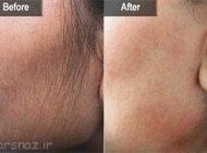 روش های درمان کامل موهای زائد بدن را بشناسیم