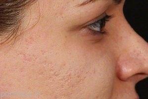 روشی طبیعی برای از بین بردن جای جوش صورت