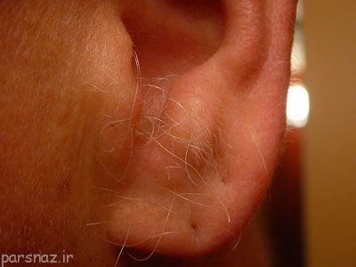 وجود مو روی لاله گوش و بیماری که باید بدانید