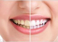 با این عادت ها دندان هایتان خراب می شوند