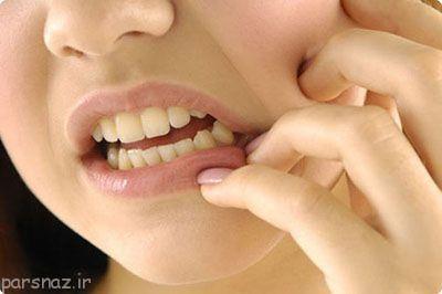 این عادات موجب خراب شدن دندان ها می شوند