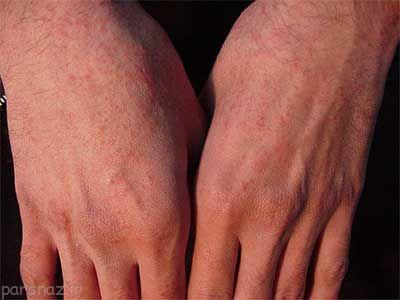 با حساسیت های پوستی چه کنیم؟