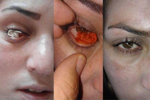 چشمان زن اردبیلی نخ تولید می کند + عکس