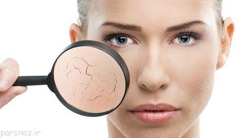 مواظب پوست خشک باشیم +راه درمان