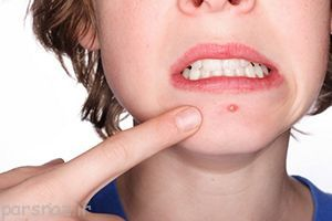 چگونه جای جوش را از بین ببریم؟ سلامت پوست
