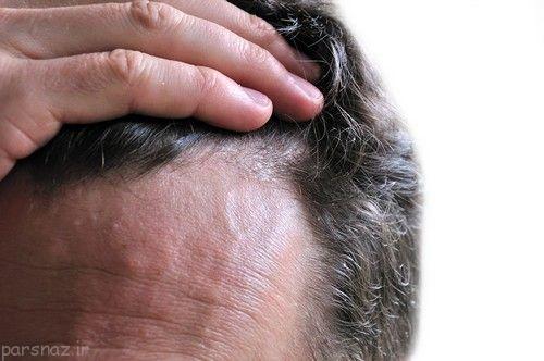 شوره سر را با طب سنتی درمان کنیم
