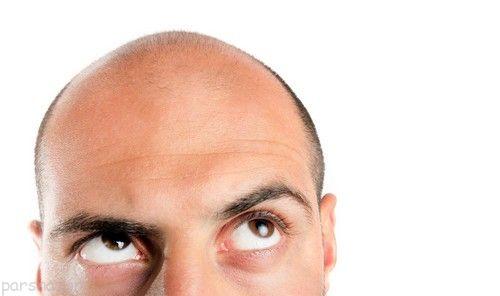 ریزش مو را بطور قطعی درمان کنیم