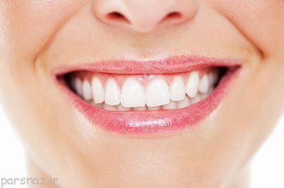 سفید کردن دندان ها با این روش ها حتمی است