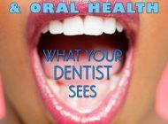 بیماری دیابت و تاثیرات روی دندان ها