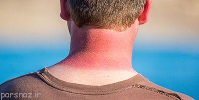علایم آفتاب سوختگی را بشناسیم