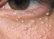 با دانه های پوستی زیر چشم چکار کنیم؟