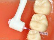 جرم گیری دندان برای همه ضروری است