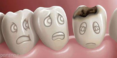 مراقب پوسیدگی و ایجاد حفره دندان باشید
