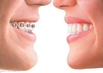 مضرات سفید کردن دندان ها را بدانیم