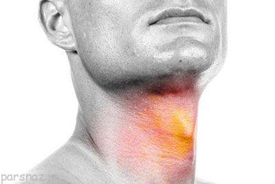 غده تیروئید چه اعمالی در بدن انجام می دهد