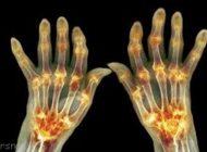 روش های درمان بیماری آرتروز را بدانیم