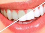 نکاتی برای اینکه دندان هایمان جرم نگیرد