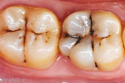 جلوی پوسیدگی دندان را بگیریم