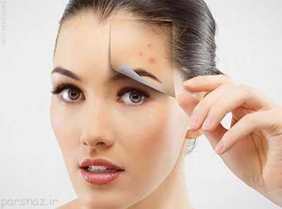 جوش صورت و راه های درمان صحیح آن