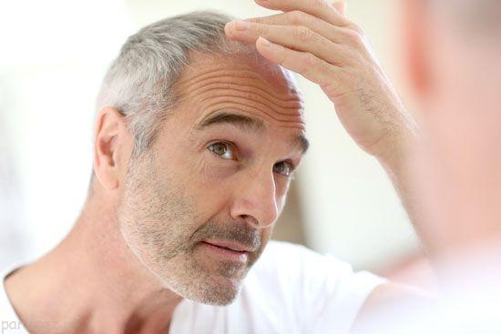 رابطه شغل و ریزش موهای شما
