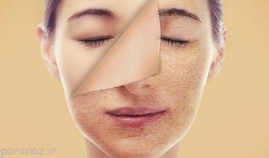 خشکی پوست و راه های درمان آن را بشناسیم