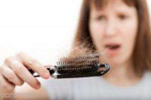 بطور طبیعی همه ما باید ریزش مو داشته باشیم