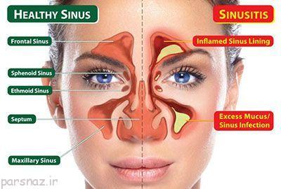 سینوزیت و راه های درمان کردن آن
