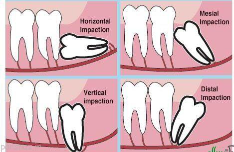 درباره دندان عقل و جراحی های آن بیشتر بدانیم