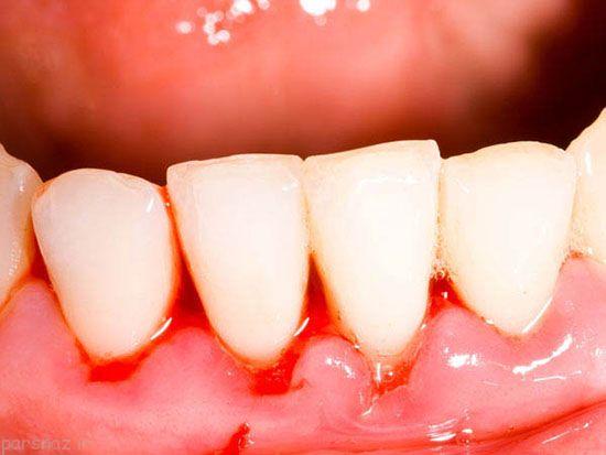 درباره لیزر درمانی دندان چه می دانید؟