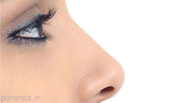 تب جراحی زیبایی بینی در میان نوجوانان