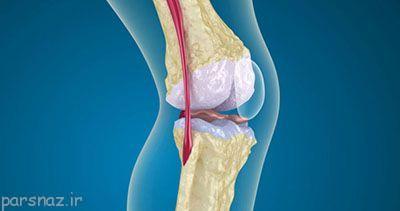 مراقب عفونت های استخوانی باشید