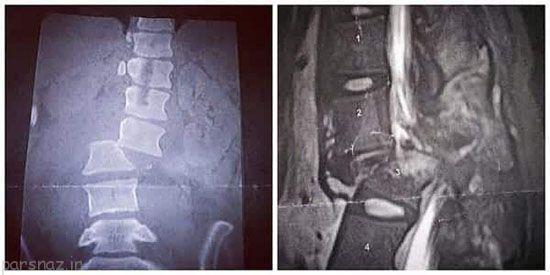وضعیت دختری که توسط نامزدش از ماشین پرت شد