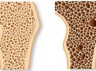 پوکی استخوان و جلوگیری از ابتلا به آن