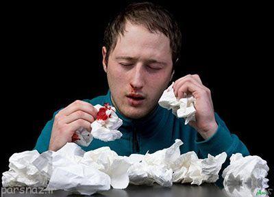 خونریزی بینی و ترفندهایی برای بند آمدن