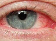 چرا چشم ما قرمز و خون گرفته می شود؟