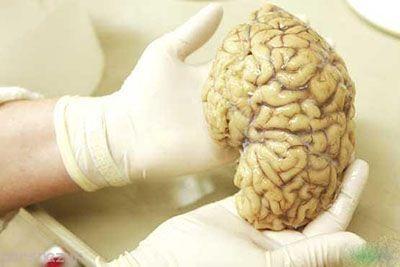 مرکز احساسات در مغز و کشفیات جدید