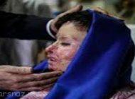 دختر قربانی اسید پاشی و رنج هایش
