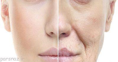 چرا چروک پوست در سنین بالا بوجود می آید؟