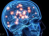 درباره مرگ مغزی در انسان بیشتر بدانیم