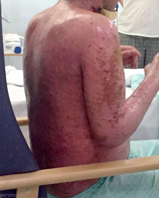 حساسیتی که انسان را زنده زنده می سوزاند