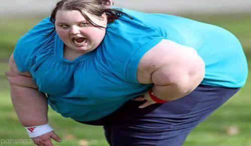 عاقبت حیرت انگیز دختر 210 کیلویی انگلیس