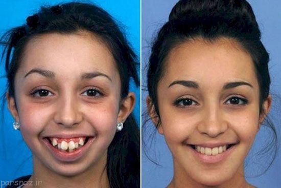 جراحی فک دختر زیبا را به این شکل درآورد