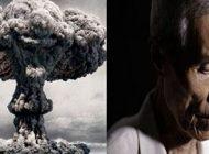 آثار بمب اتم روی بدن انسان ها +عکس